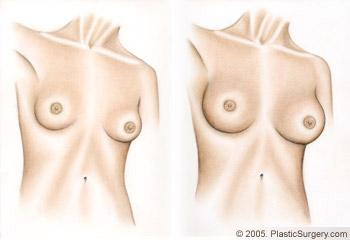 breast augmentation lynnwood